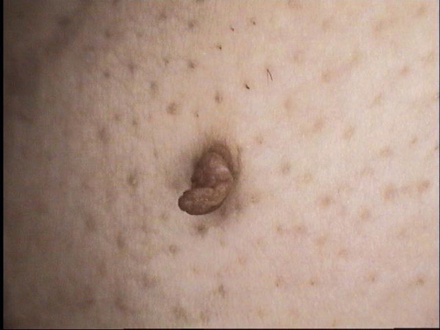 Skin Tag